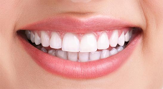 Éclaircissement dentaire Gleize