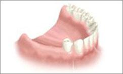 Implant dentaire Gleize